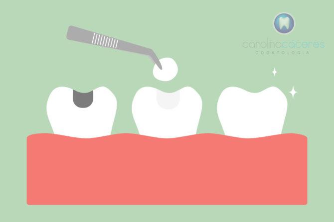 Amalgamas y Metales en la boca